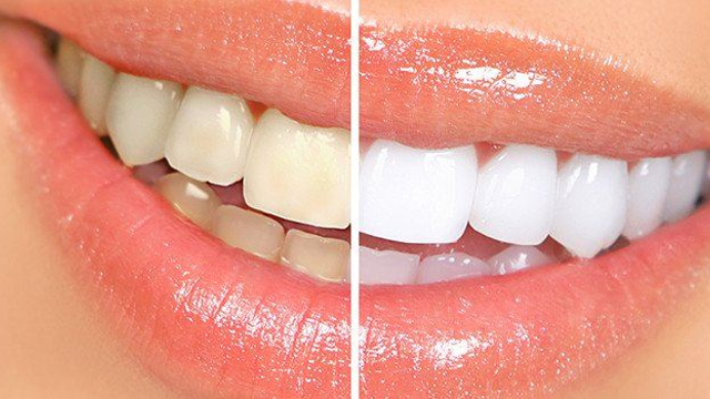Drinking Tea Can Stain Your Teeth More Than Coffee