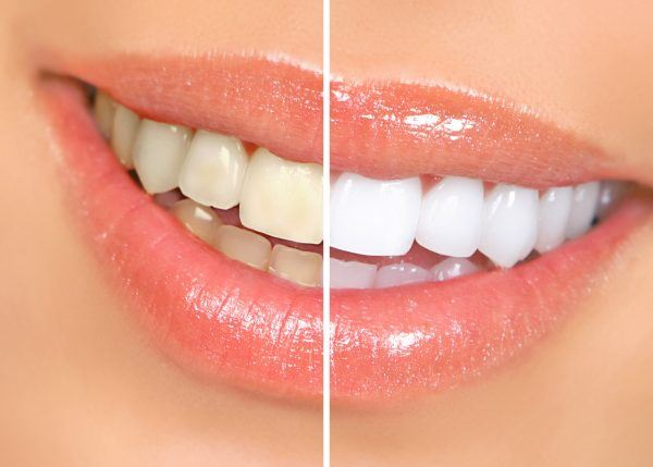 Betul Ke Gigi Warna Kuning Adalah Lebih Sihat Dan Normal Era