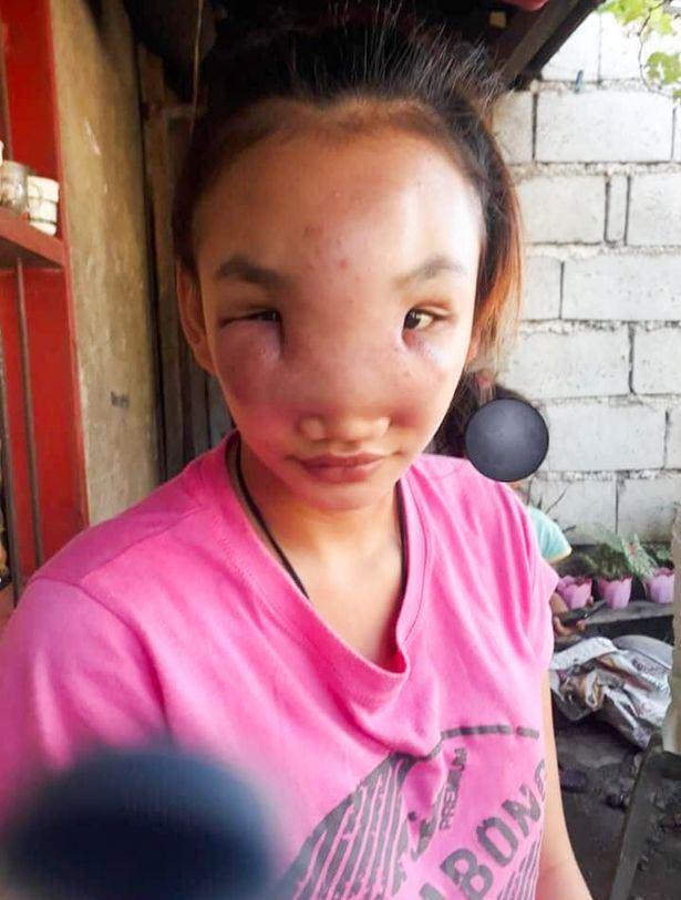 gadis alami penyakit misteri lepas picit jerawat pada hidungnya