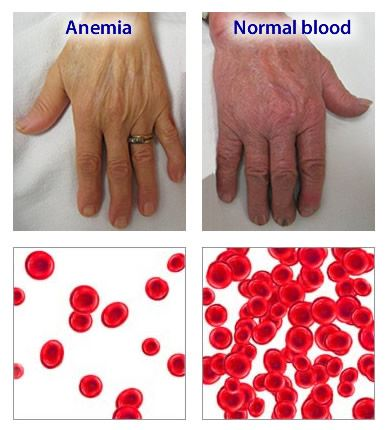 asyik rasa letih sepanjang masa boleh jadi tanda hidap anemia