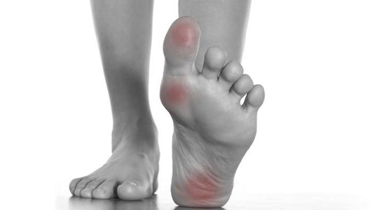 tiba-tiba rasa kebas atau semut-semut pada kaki tanda diabetes?