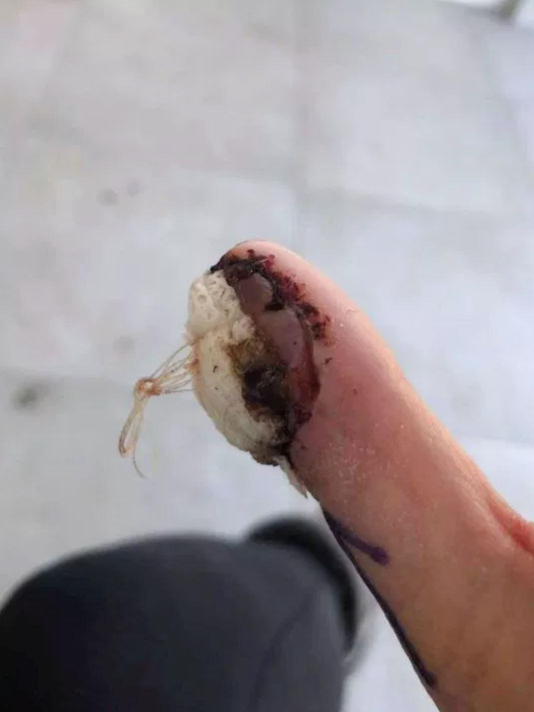 dulu suka gigit kuku, sekarang jari ibu kena potong pula
