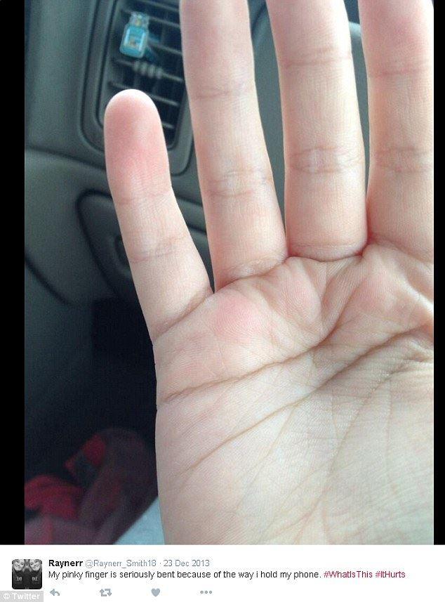 jari kelingking ada lekuk sebab pegang phone lama sangat - kajian