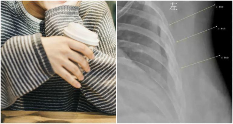 patah tulang rusuk akibat selalu minum kopi