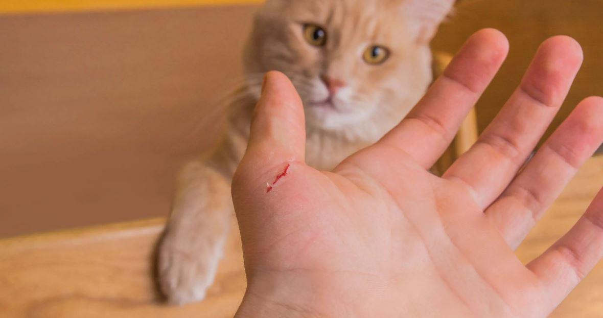 jangan abaikan kalau dicakar dan digigit kucing, ini perkara yang perlu anda tahu