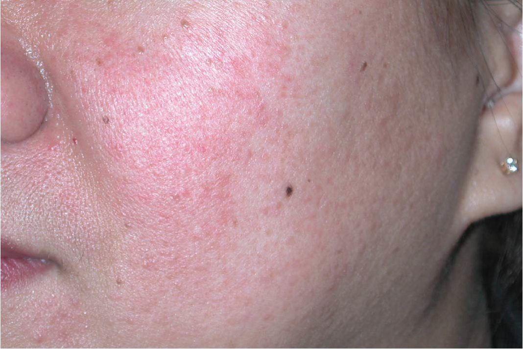 Image result for steroid produk kosmetik