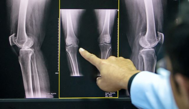 5 medical facts that you should know about that pain in your knees