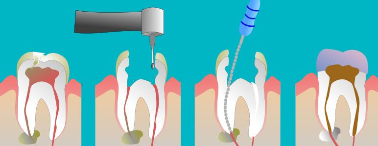 挑完牙根后,你必须注意的6大点!