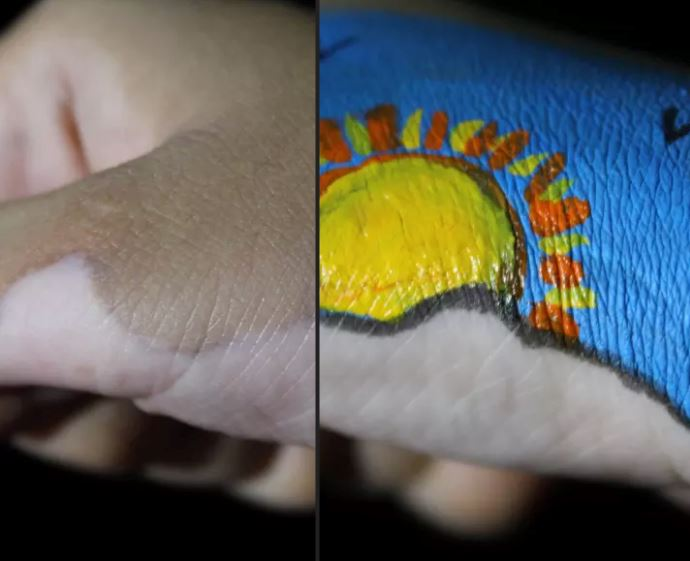 this woman with skin disease turns her 'illness' into art