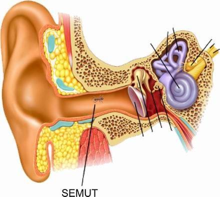 apa nak buat kalau semut dan lipas masuk dalam telinga?