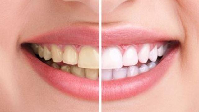gigi kuning tanda gigi sihat