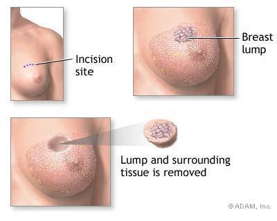 faktor dan tanda awal kanser payudara