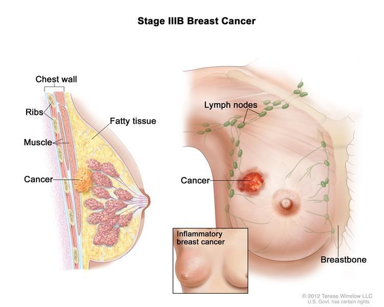 Image result for kanser payudara lelaki