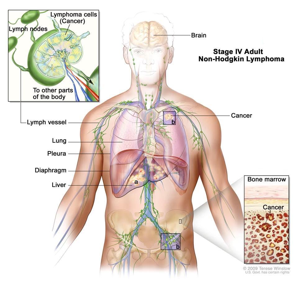 doktor ini jelaskan tanda-tanda diserang kanser limfoma