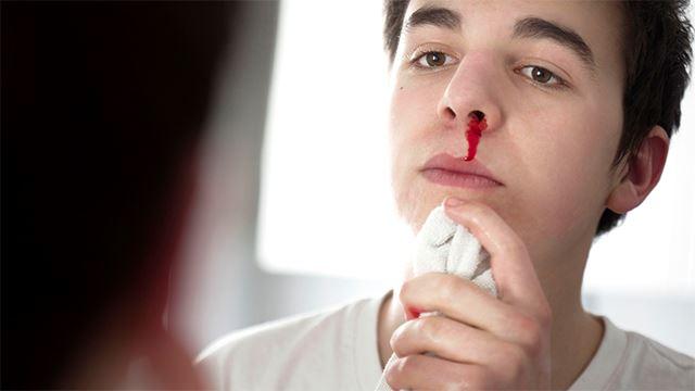 apa perlu buat kalau hidung berdarah tiba-tiba?