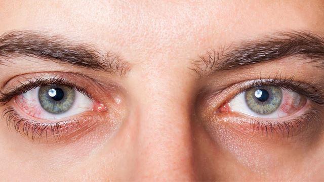 jaga-jaga virus covid-19 pun boleh merebak melalui mata