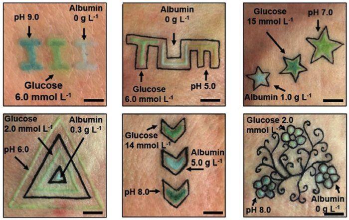 khas untuk pesakit diabetes, tatu ubah warna ikut kandungan gula dalam darah