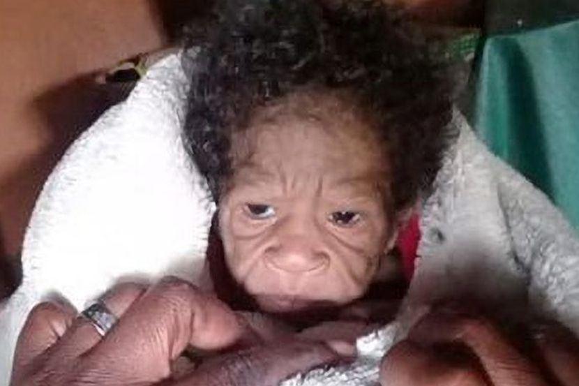ibu muda terkejut lepas lahirkan bayi berwajah tua