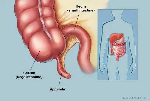 apa beza kembung perut dengan apendiks? salah satunya boleh bawa maut!
