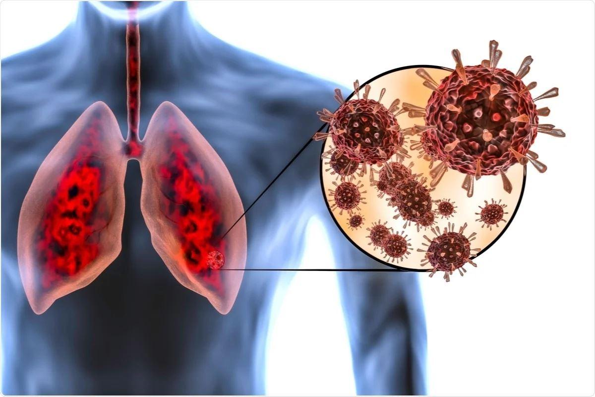 ini perbandingan paru-paru perokok dengan pesakit covid-19