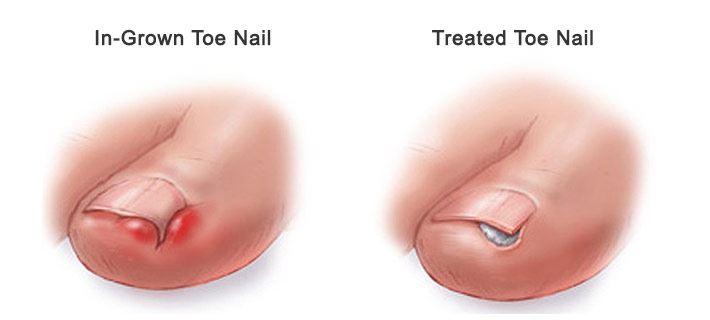 pembedahan kecil rawat cengkam kuku, jika dibiar lebih parah!