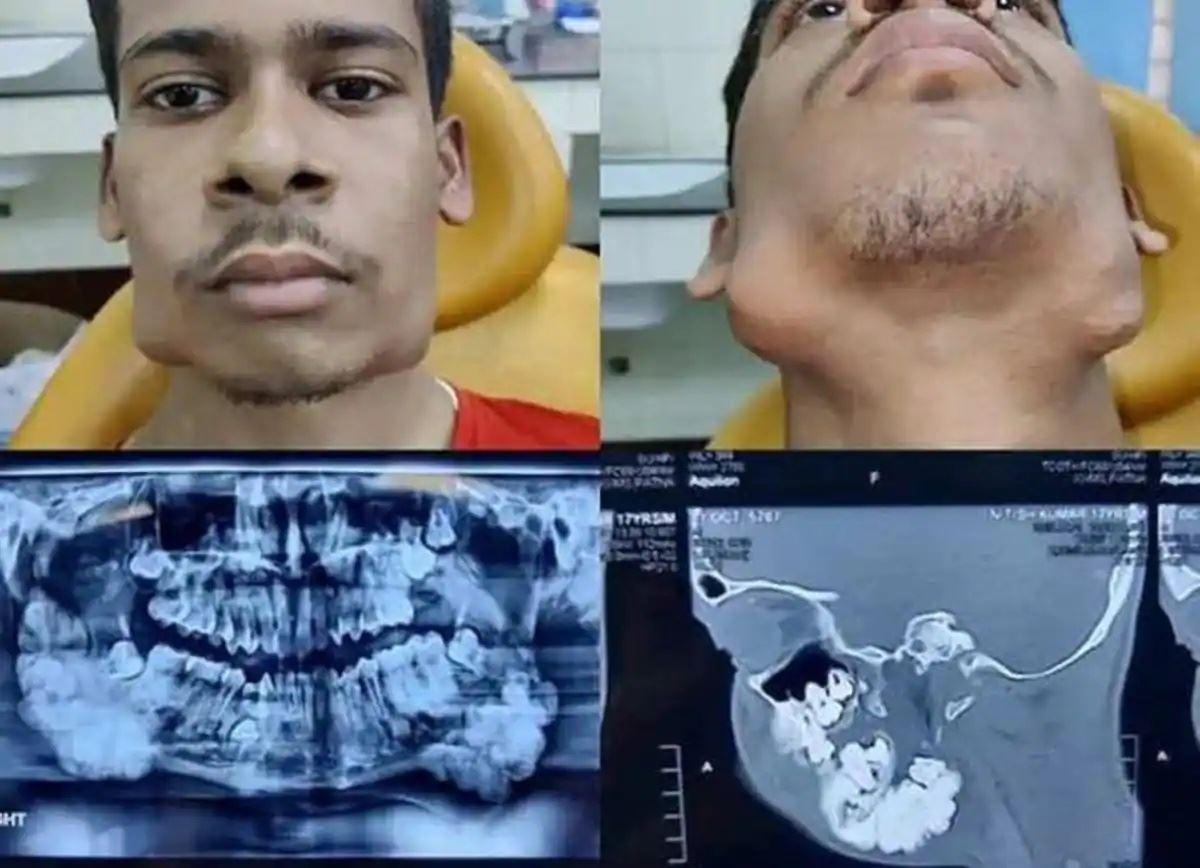 ramai terkejut lihat gigi tambahan tumbuh pada rahang lelaki ini