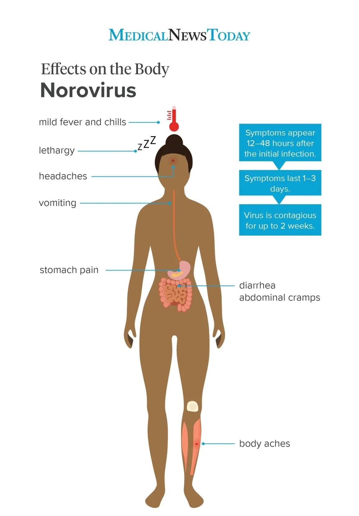 belum habis covid-19, wabak norovirus pula menular di britain