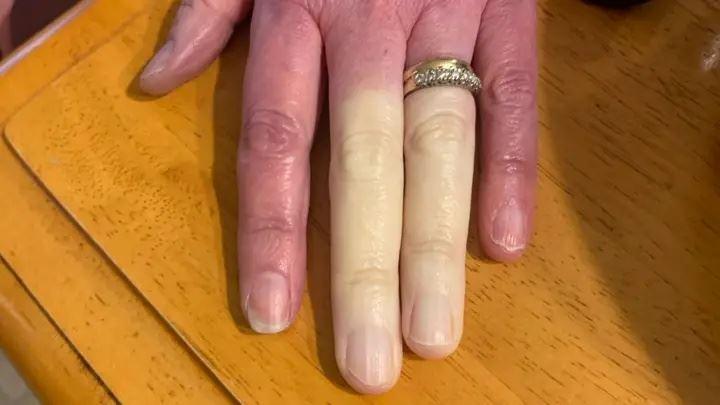 pernahkah anda dengar penyakit yang tukarkan jari jadi biru ini?