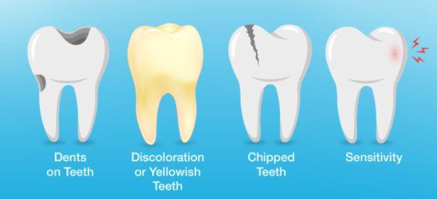 pakar beri amaran bahaya tabiat berus gigi lepas makan
