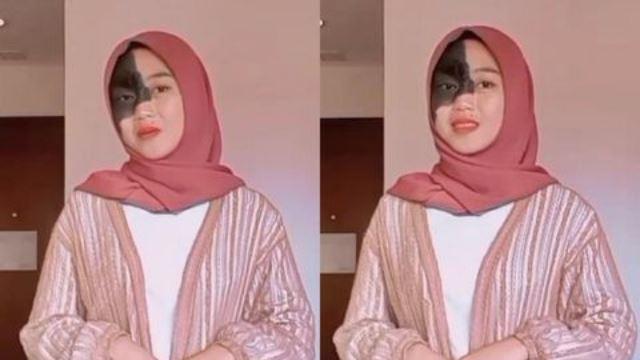 kisah gadis remaja indonesia yang dibuli kerana tanda lahir pada separuh wajahnya, tekad tak mahu buang