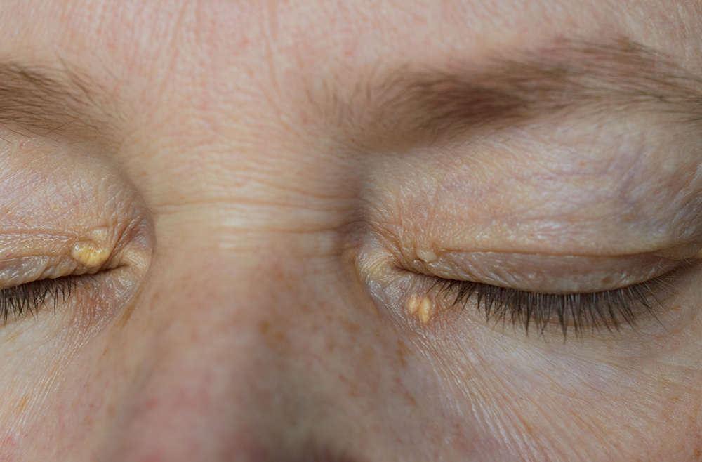 ada bintil kuning pada mata? ia boleh jadi tanda sakit jantung