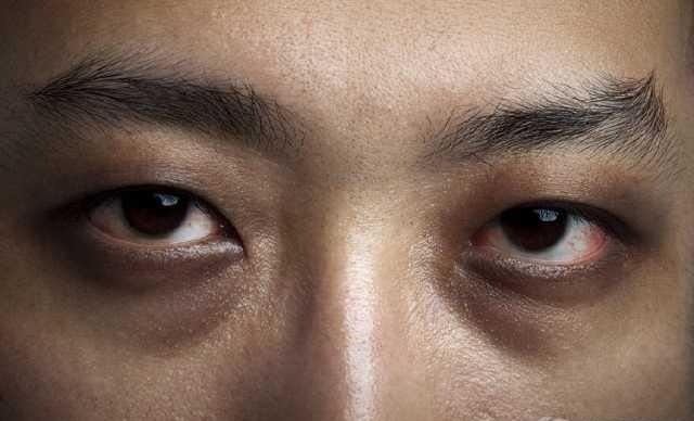"""想摆脱""""熊猫眼""""?利用这3种方法去掉黑眼圈!"""