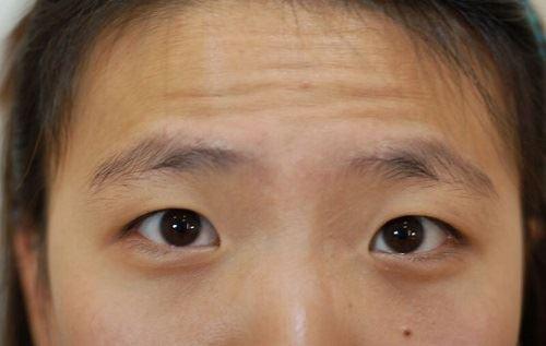 脸上有皱纹很显老?教你9个减少皱纹的妙招!赶快记起来!