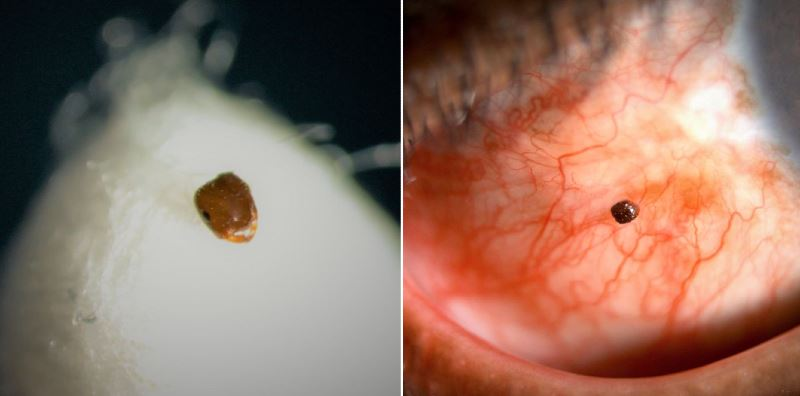 ophthalmologist shares how an ant entered a man's eye while riding his motorcycle